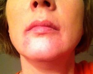 Allergie-Mund